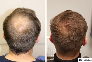 greffe de cheveux boulogne-billancourt résultat