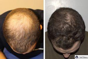 greffe de cheveux levallois-perret résultat
