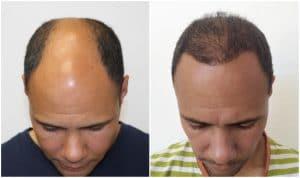 greffe de cheveux Villeurbanne résultat
