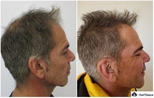 greffe de cheveux Montrouge résultat