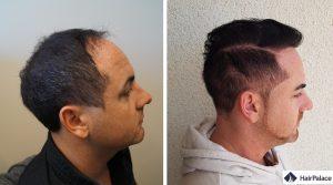 greffe de cheveux Rueil-Malmaison résultat