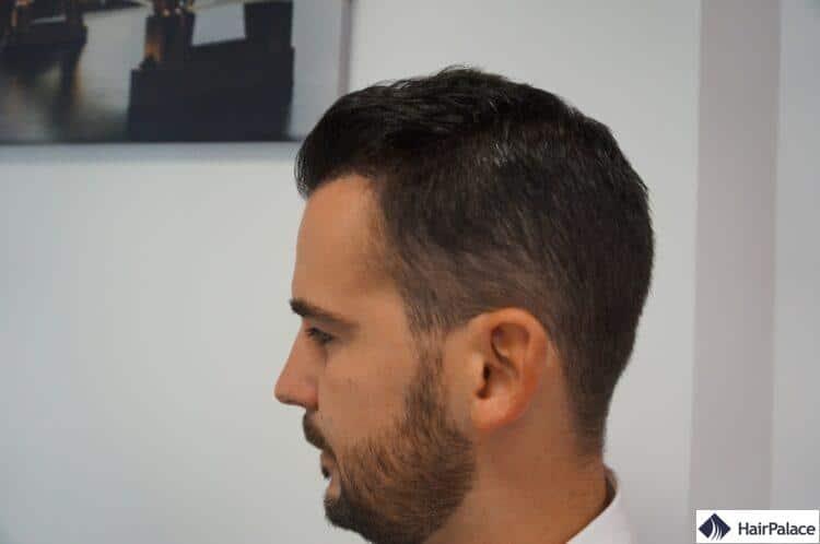 Maxim un an après une greffe de cheveux réussie
