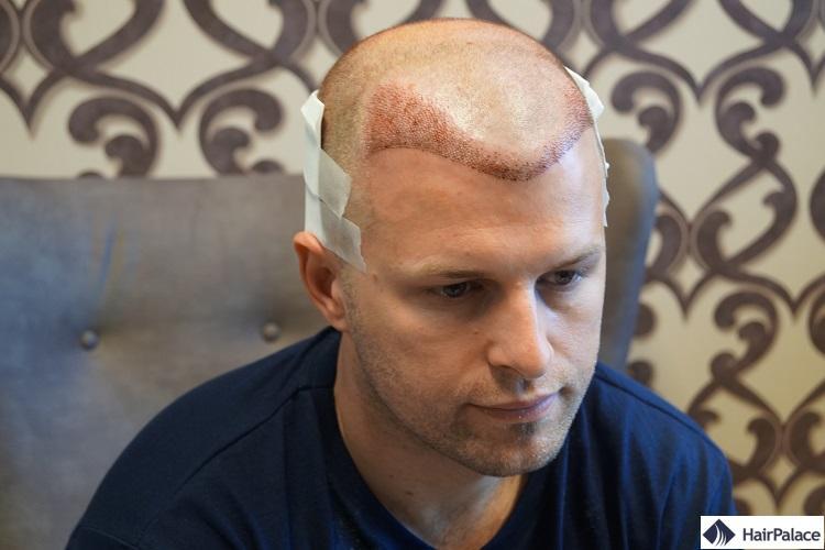 Peter après la FUE2 greffe de cheveux