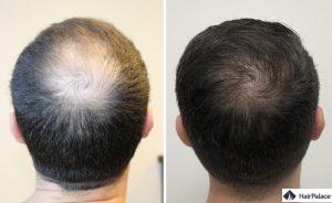 greffe de cheveux Avignon résultat