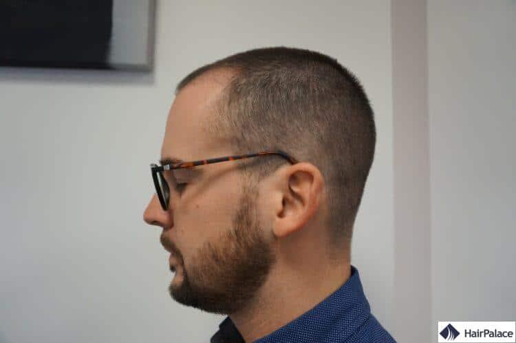 Le 3ème mois après FUE2 greffe de cheveux