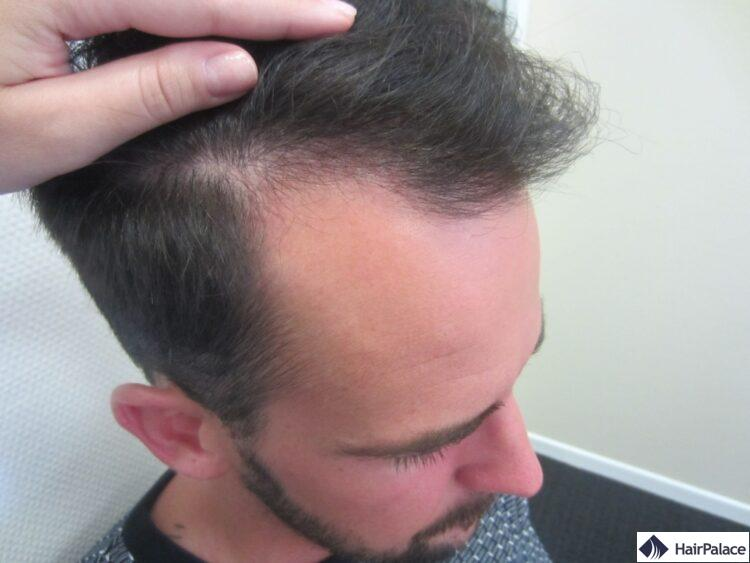 Maxim avant sa greffe de cheveux