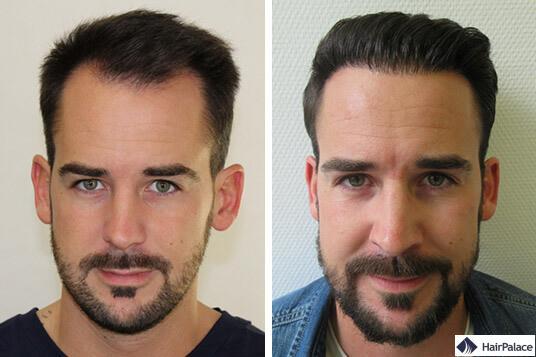 résultat de la greffe de cheveux maxime