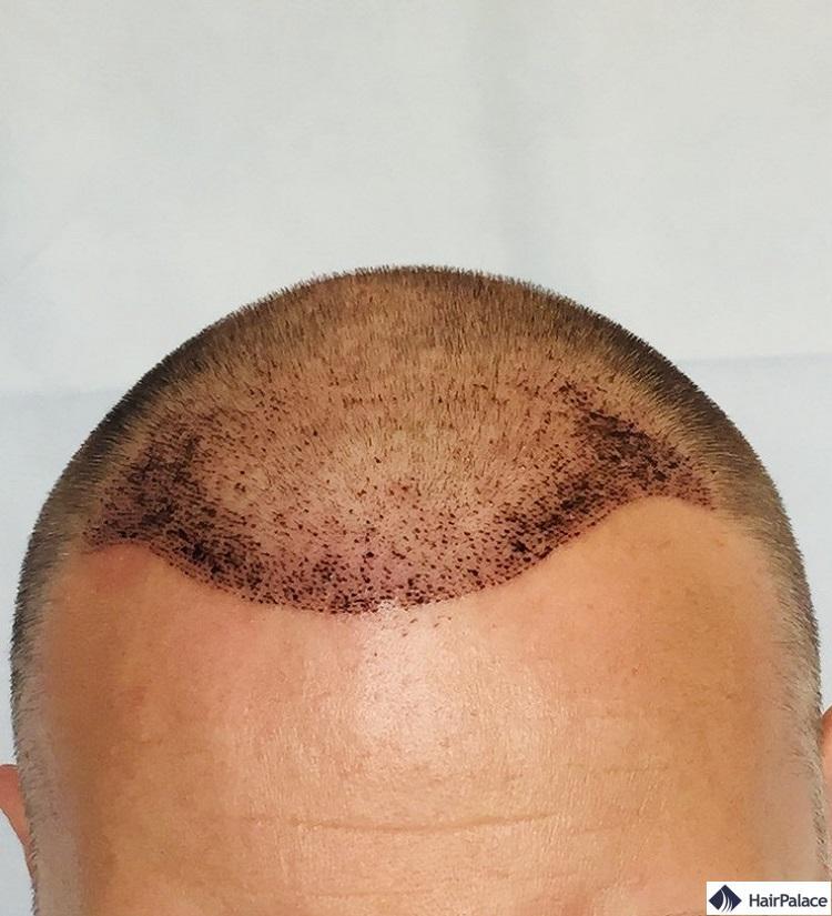 Résultat sur 1 semaine implant capillaire