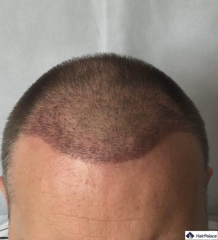 Résultat sur 3 semaine implant capillaire