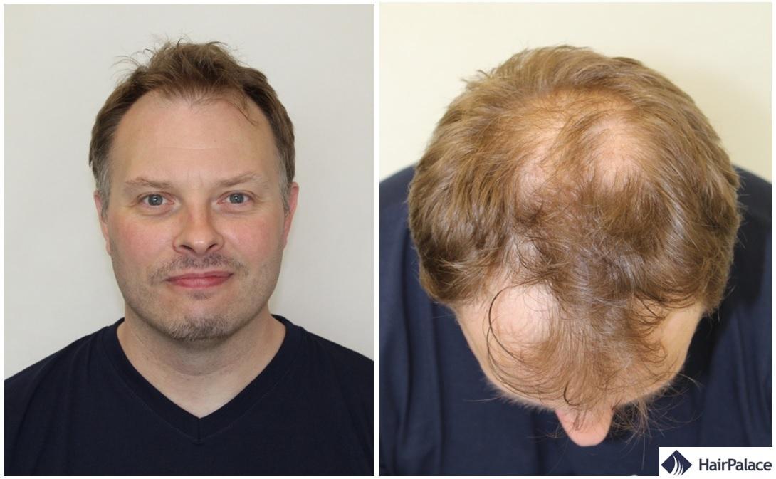 Colsultation greffe de cheveux