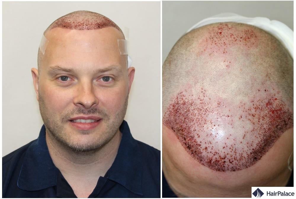 FUE2 implant capillaire resultat