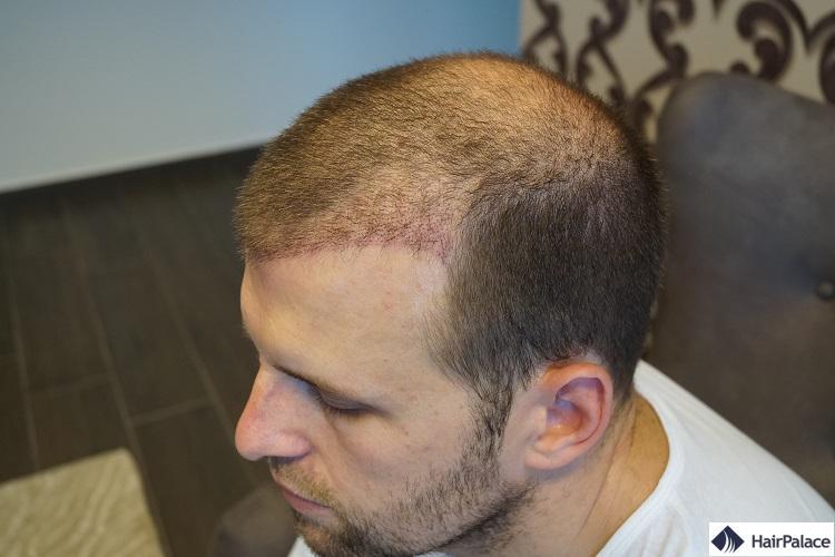 Peter après FUE2 greffe de cheveux