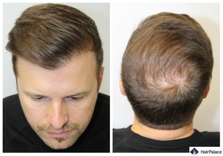 Peter résultat de la greffe de cheveux