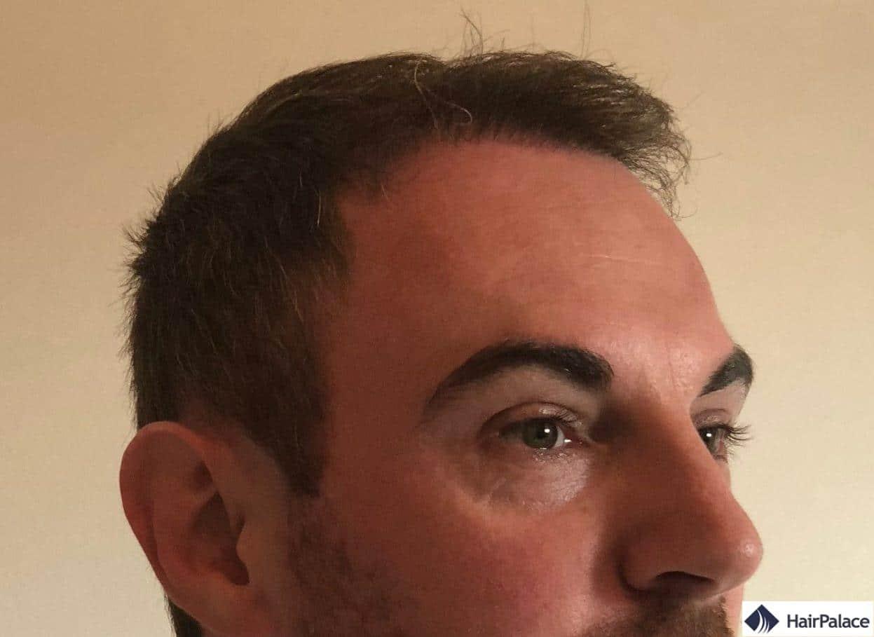 résultat de greffe de cheveux 6 mois