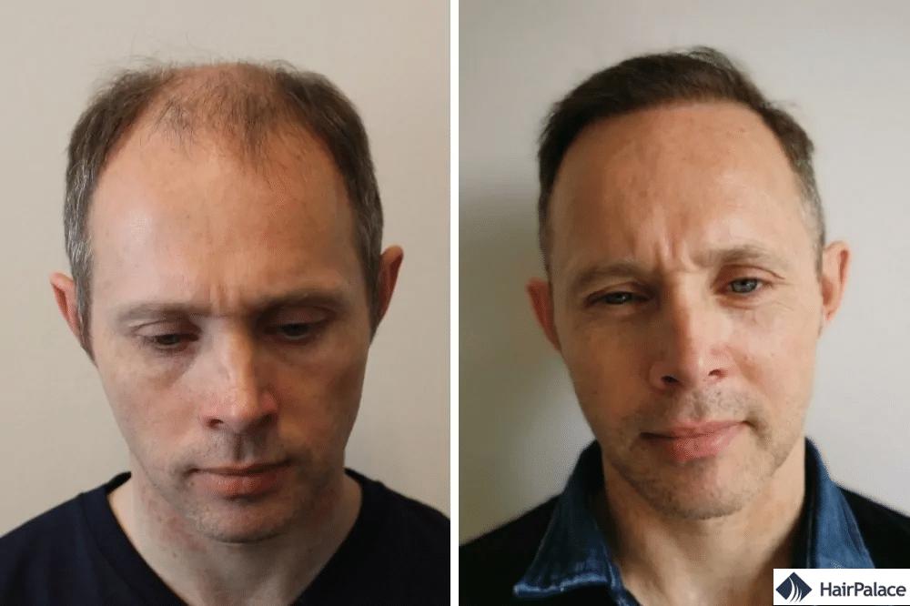 méthode fue2 greffe de cheveux