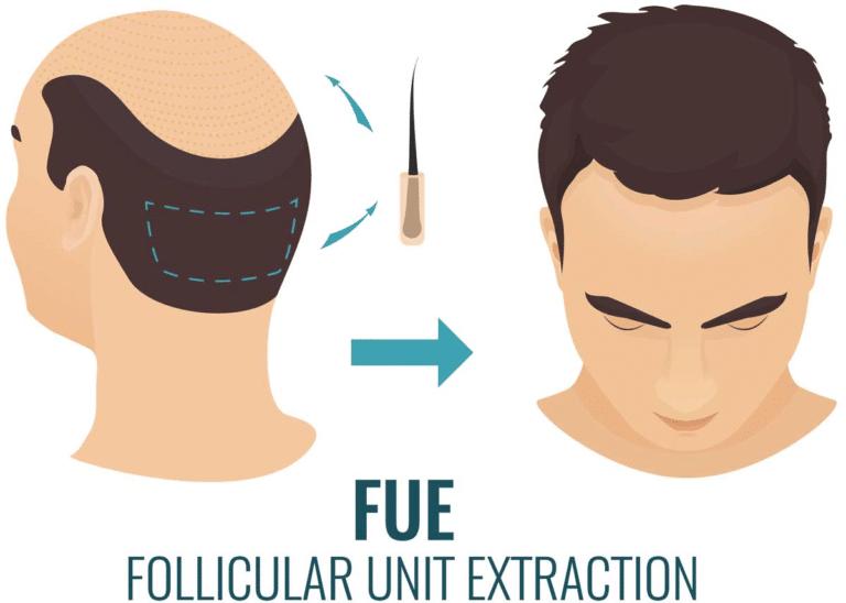 Lors de la transplantation de cheveux fue, les greffons sont extraits et implantés un par un.