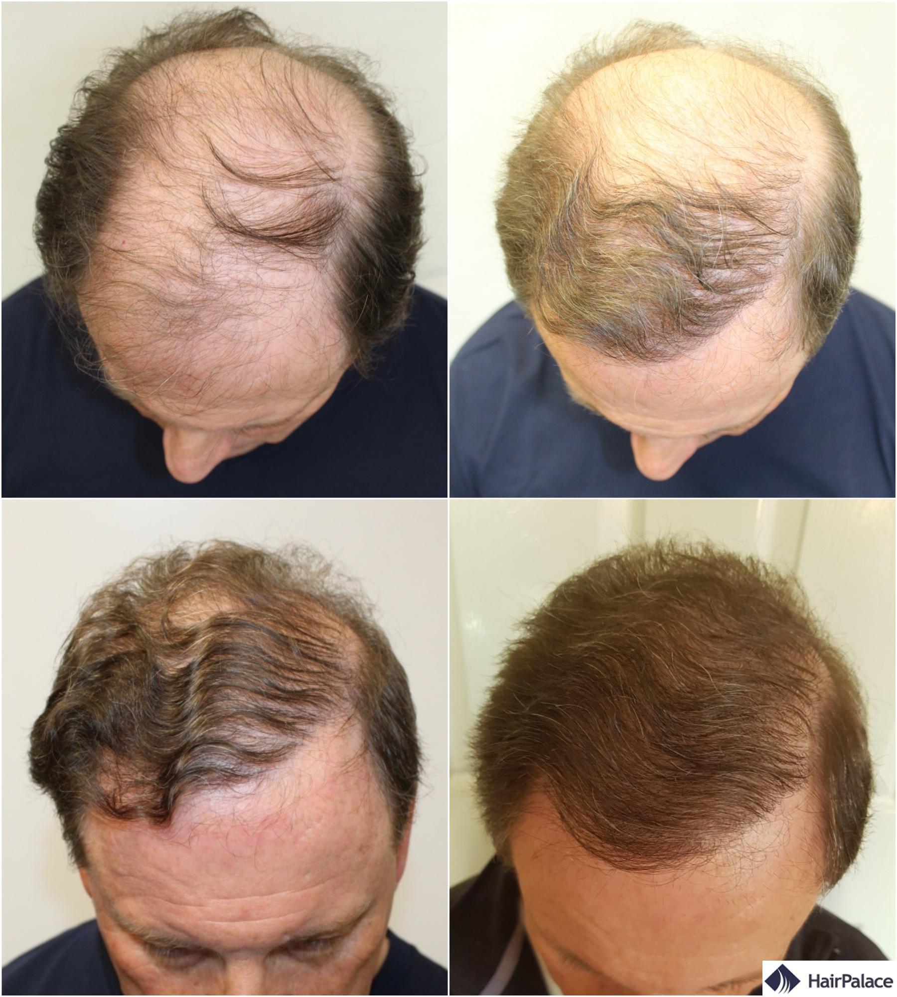 Les cheveux de Derek avant et apres la restauration
