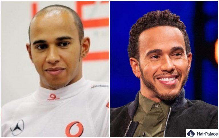 Avant et après la greffe de cheveux de Lewis Hamilton