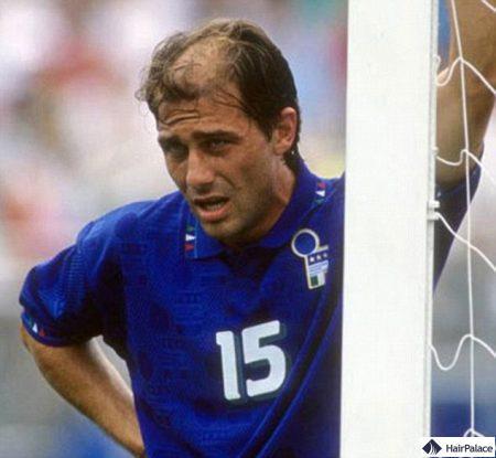 Jeune Conte avec une perte de cheveux visible