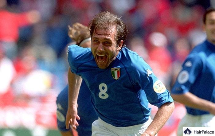 Greffe de cheveux Antonio Conte en 2000