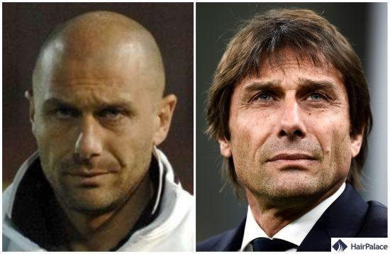 Antonio Conte avant et après la greffe de cheveux