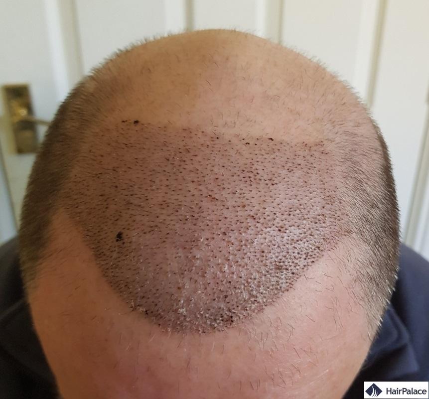 1 semaine après l'implantation des cheveux