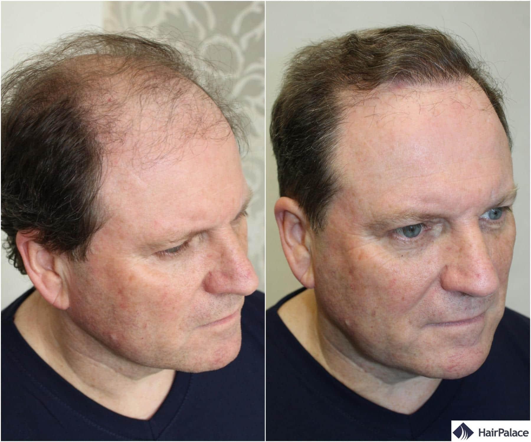 resultat de greffe de cheveux derek