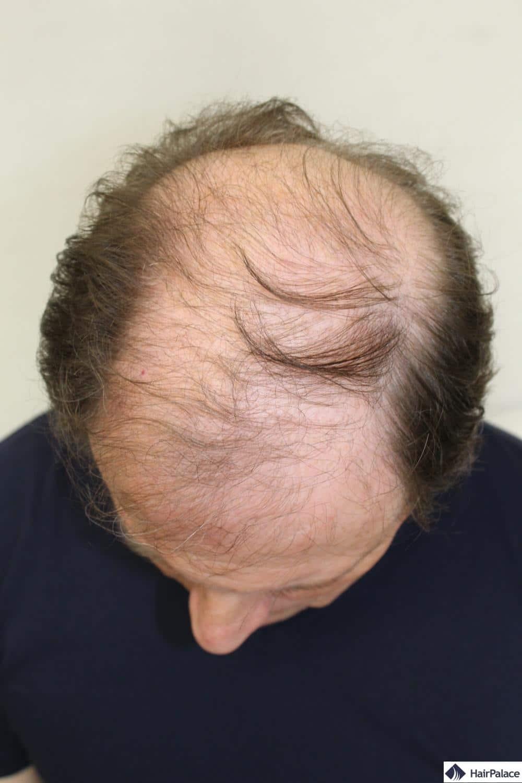 calvitie avant l'implantation des cheveux
