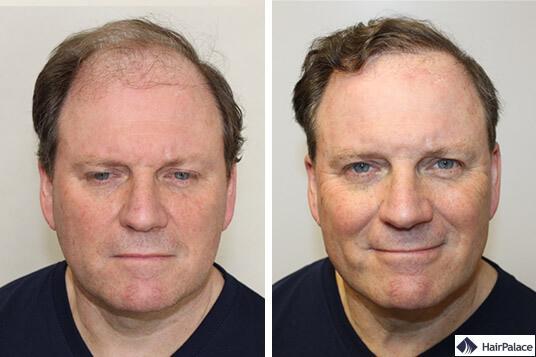 implant capillaire avant et après