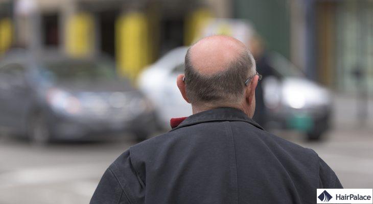 WAY-316606 solution chute de cheveux
