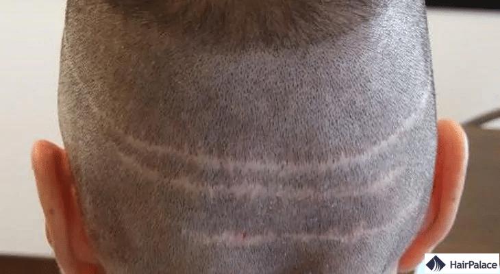 Cicatrices causées par la méthode FUT.
