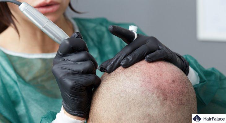 la micropigmentation du cuir chevelu