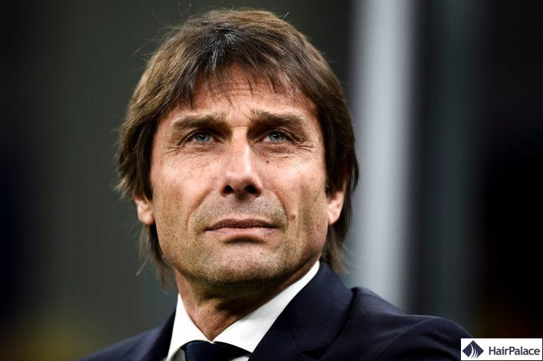 Antonio Conte avant et après la greffe de cheveux FUE