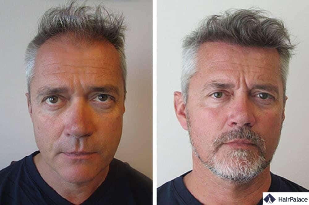 Résultat après chirurgie capillaire FUE2